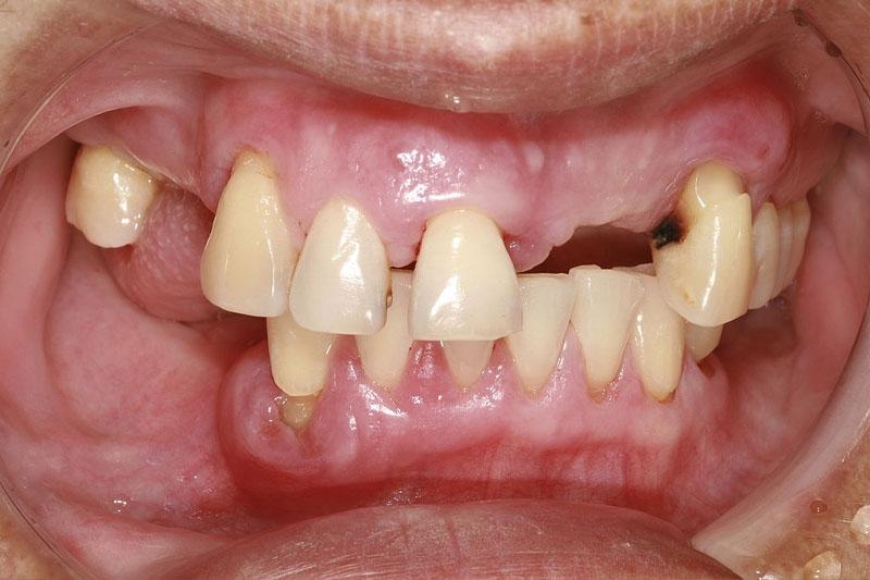 Mất răng lâu ngày gây tiêu xương hàm dẫn đến lệch hàm