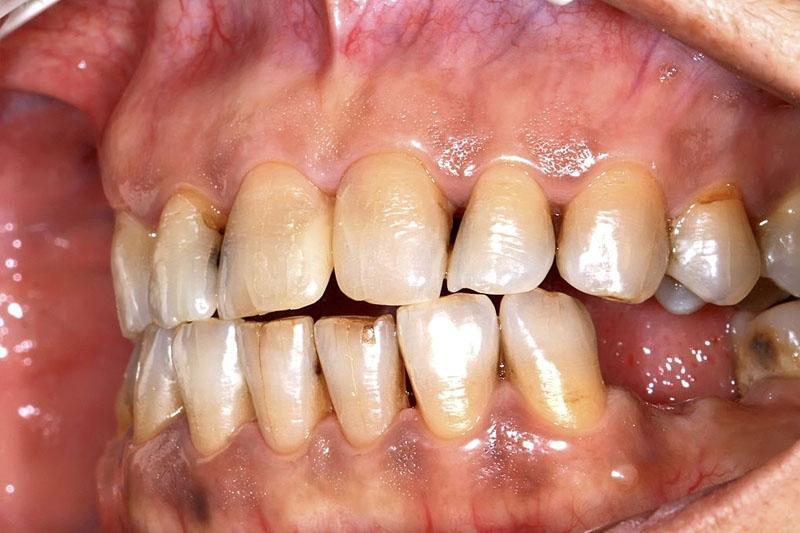 Răng răng xô lệch, giãn rộng tạo thành nhiều khe hở giữa các răng