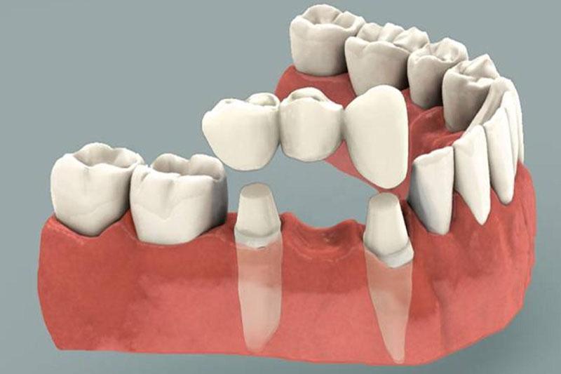 Cầu răng sứ cần tác động đến các răng kế cận để làm trụ răng nâng đỡ răng sứ