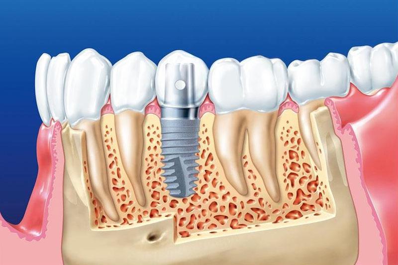 Răng Implant có cấu trúc tương tự như răng thật
