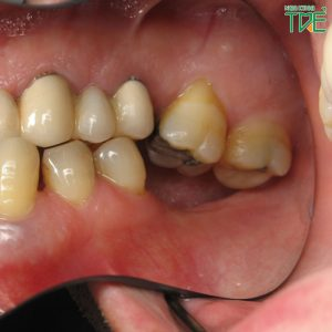 Mất răng hàm số 7 có sao không? Trồng Implant phục hình răng tối ưu