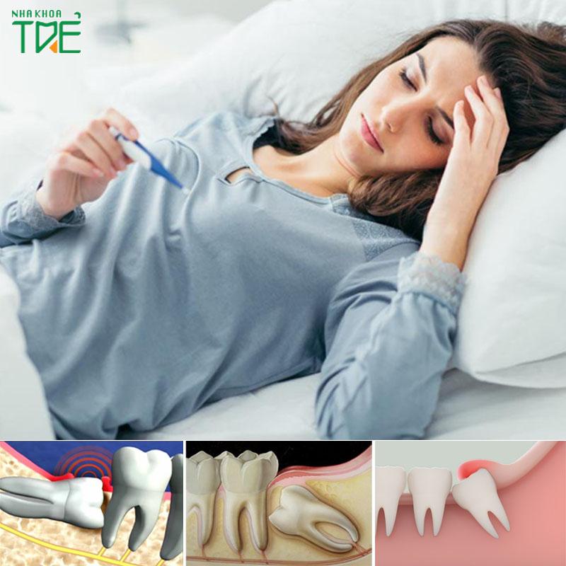 Mọc răng khôn gây sốt phải xử lý như thế nào?
