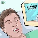 Nhổ răng khôn xong cần làm gì? Cần kiêng gì?