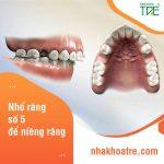 Nhổ răng số 5 để niềng răng trong trường hợp nào? Có ảnh hưởng gì không?