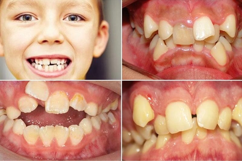 Nên đưa trẻ đến nha khoa thăm khám ngay khi nhân thấy răng lệch lạc, khấp khểnh