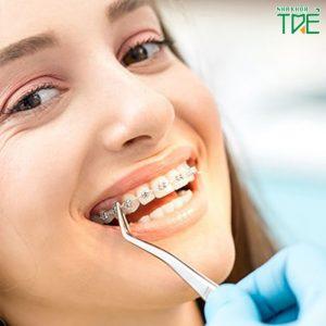 Niềng răng có làm hỏng men răng không?