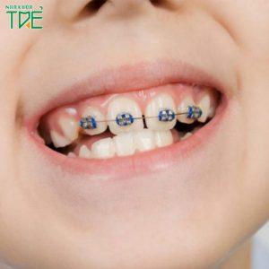 Niềng răng cửa cho bé: Can thiệp sớm để đạt hiệu quả tối đa