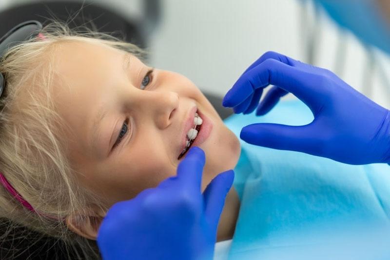 Niềng răng ở giai đoạn trẻ đang thay răng có thể can thiệp vào cấu trúc xương hàm