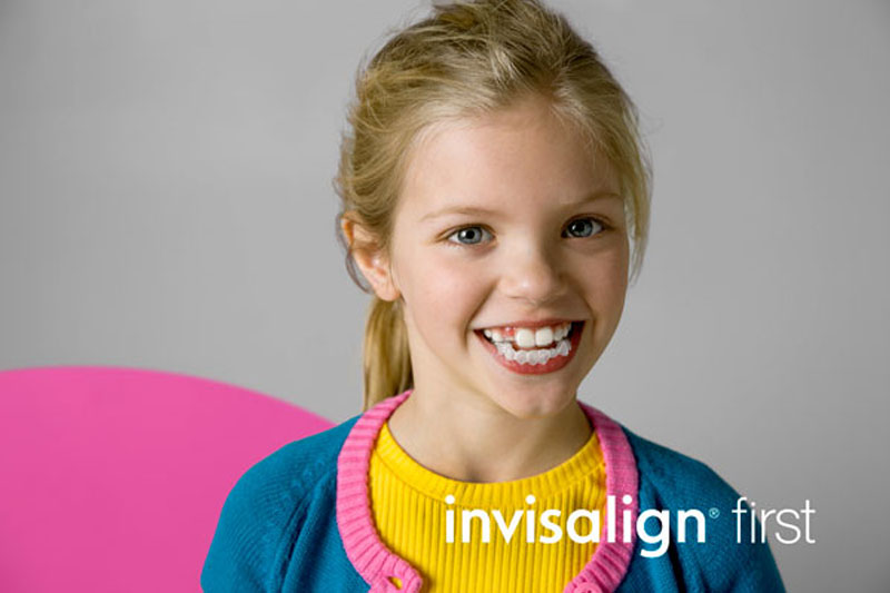 Niềng răng trong suốt Invisalign cho trẻ 7 - 11 tuổi (Invisalign First)