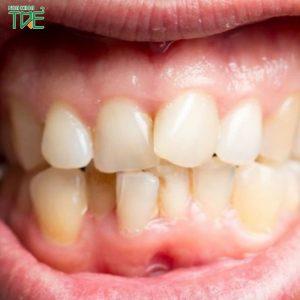 Niềng răng – Giải pháp tối ưu cho hàm răng không đều