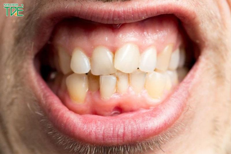 Hàm răng không đều gây ra nhiều vấn đề răng miệng