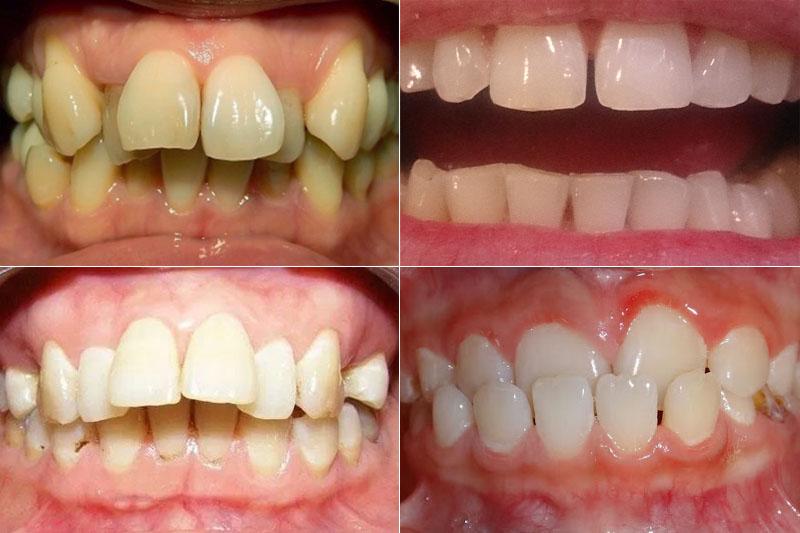 Các trường hợp phổ biến bao gồm răng lệch lạc, khấp khểnh, thưa, hô, móm