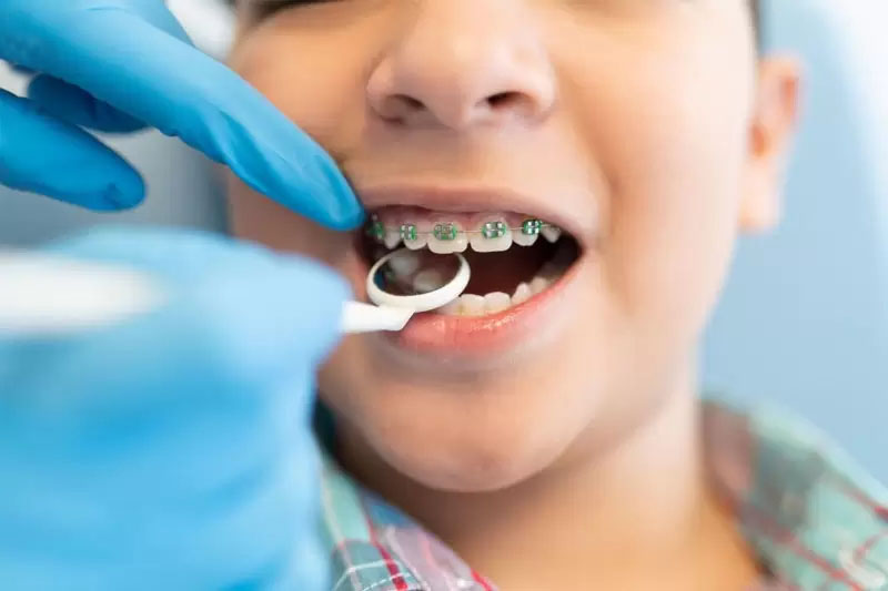 Niềng răng trẻ em sẽ mang lại hiệu quả cao với thời gian rút ngắn hơn nhiều so với người lớn