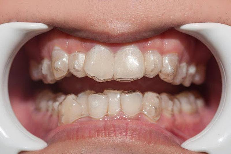 Niềng răng trong suốt giúp trẻ tự tin giao tiếp với bạn bè