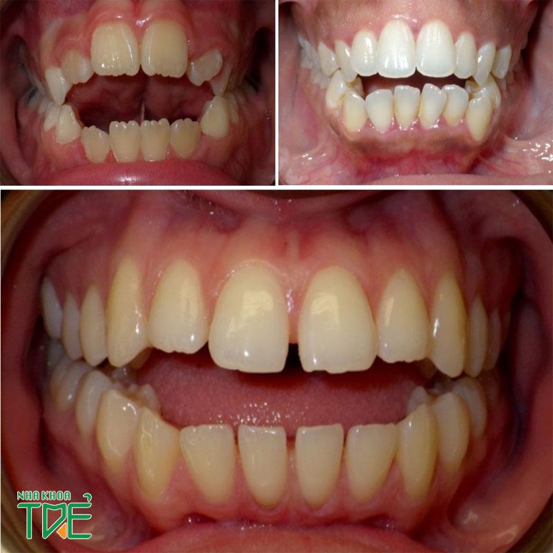 Niềng răng khớp cắn hở như thế nào? Mất bao lâu?
