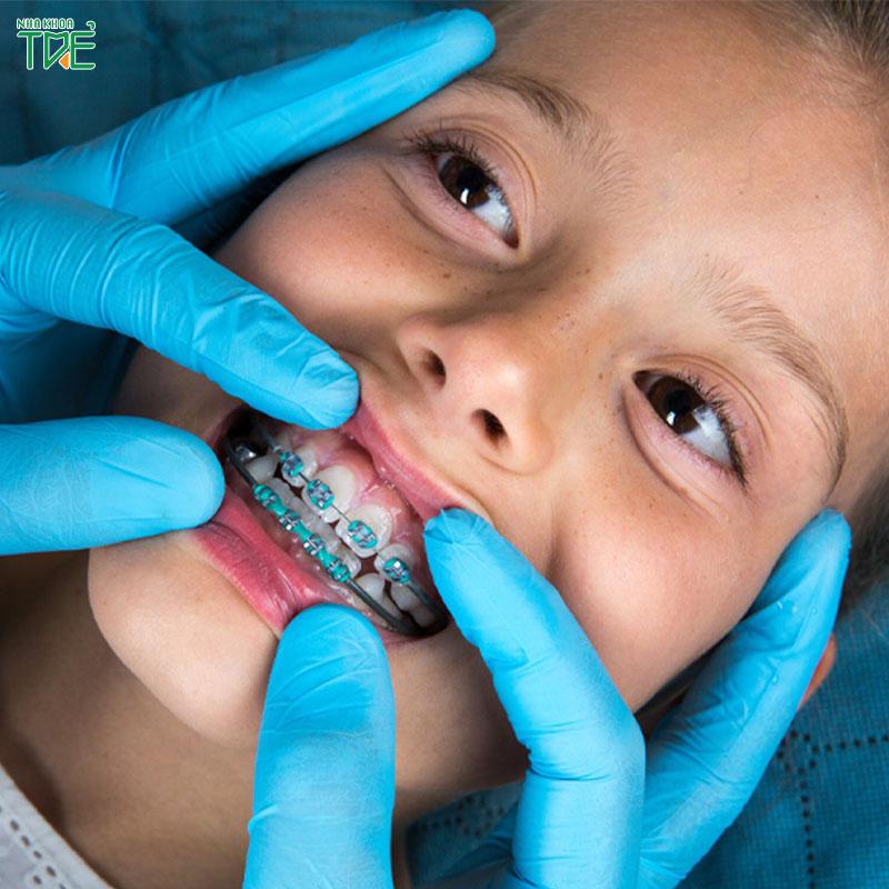 Niềng răng mọc lệch ở trẻ, giải pháp tối ưu cho sức khỏe răng miệng của trẻ