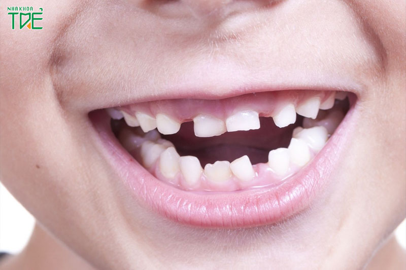Mất răng sữa sớm cũng có nguy cơ làm các răng mọc lệch lạc