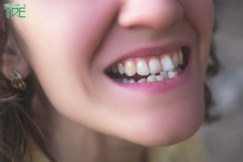 Hàm răng lệch lạc làm khuôn mặt không cân đối, thiếu thẩm mỹ