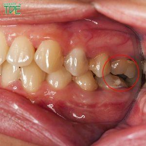 Răng khôn lung lay có nên nhổ không?