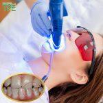 Răng nhiễm Fluor có tẩy trắng được không? Giải pháp nào tối ưu nhất