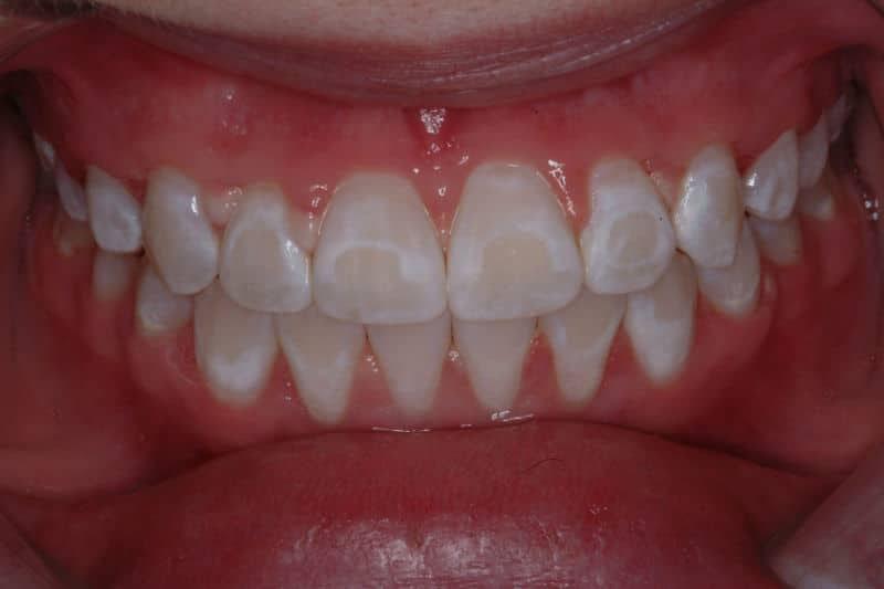 Răng nhiễm Fluor sẽ bị đổi màu, răng không trắng đều