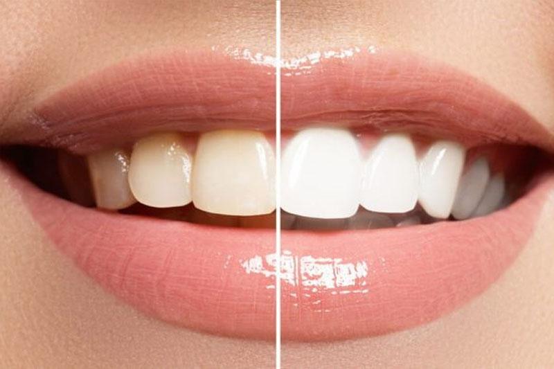 Tẩy trắng răng chỉ hiệu quả khi bị nhiễm Fluor nhẹ