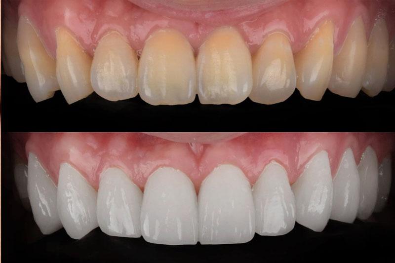 Bọc răng sứ phục hình các răng nhiễm màu nặng
