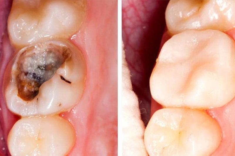 Răng sâu không quá nghiêm trọng vẫn có thể hàn trám để phục hình