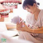 Sau sinh bao lâu thì niềng răng được? Một số lưu ý quan trọng cho mẹ sau sinh