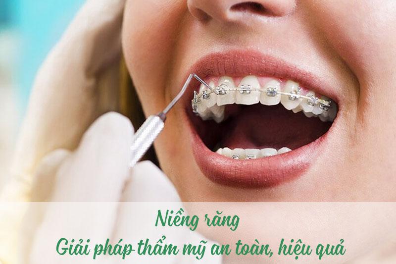 Niềng răng thực hiện an toàn cho mọi lứa tuổi