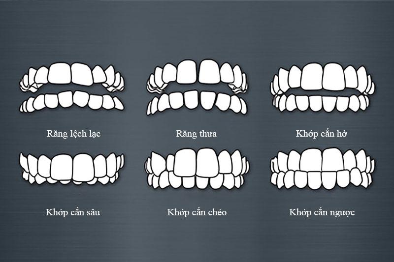 Các trường hợp phổ biến cần niềng răng từ sớm cho trẻ