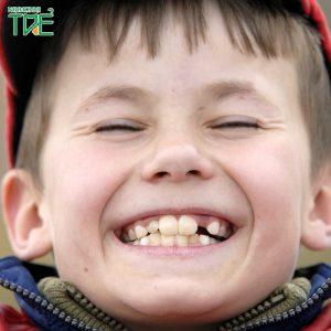 Trẻ bị lệch hàm phải làm sao? Giải pháp tối ưu nhất là gì?