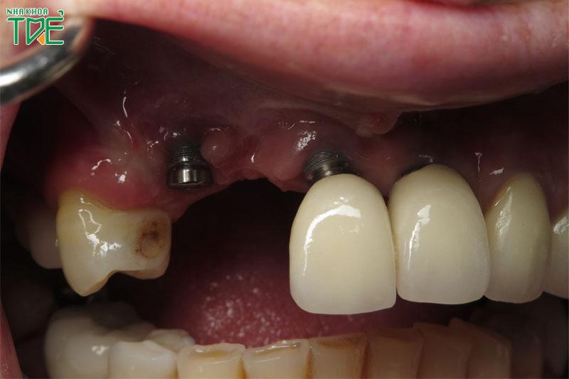 Trụ Implant bị lung lay: Nguyên nhân và cách xử lý dứt điểm