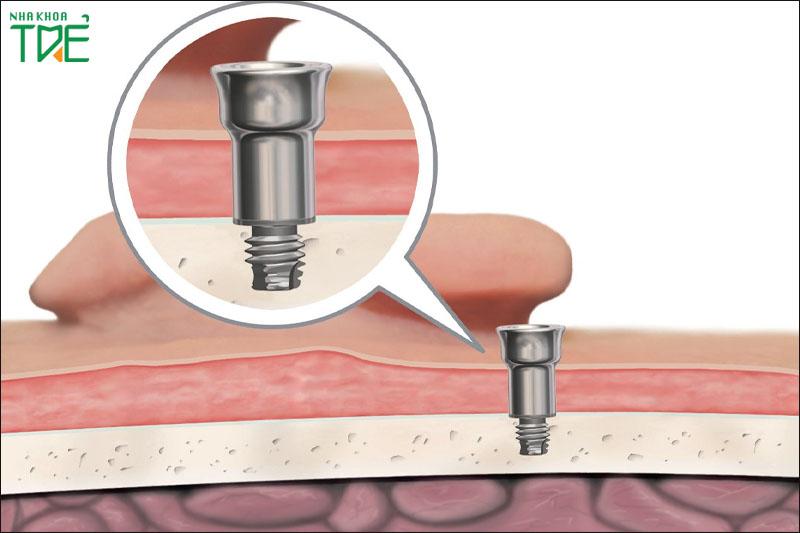 Vít nối Abutment với tru Implant bị lỏng là nguyên nhân phổ biến khiến trụ Implant bị lung lay
