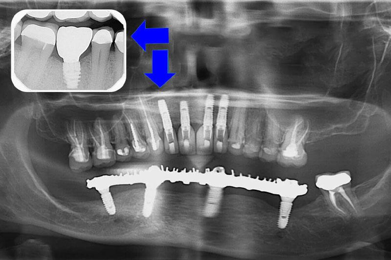 Tình trạng tiêu xương hàm ở chân răng Implant khiến chân răng lỏng lẻo, không bền chắc