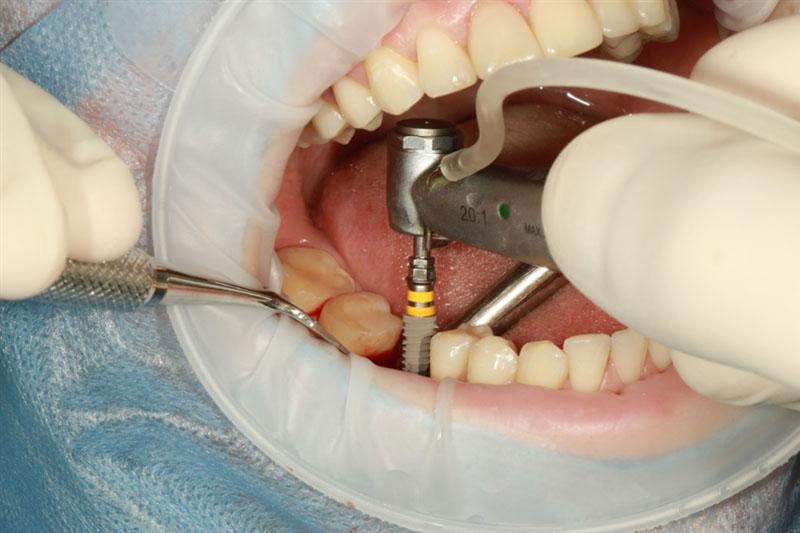 Các trường hợp gãy trụ Implant cần phục hình bằng Implant mới
