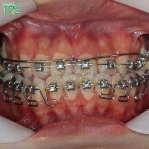 Trước và sau khi niềng răng móm thay đổi như thế nào?