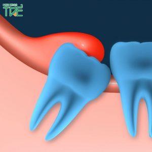 Viêm quanh thân răng khôn số 8 phải xử lý như thế nào?
