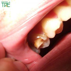 Bị vỡ chân răng do nguyên nhân nào? Cách khắc phục ra sao?