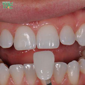 Có nên bọc răng sứ cho răng cửa bị hô không?