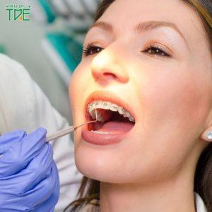 Niềng răng cho người lớn có nên không? Những kiến thức cần biết