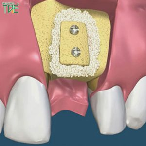 Tại sao phải ghép xương để cấy Implant? Ghép xương hàm có đau không?