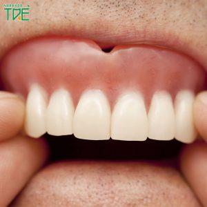 Hàm răng giả bị lỏng phải xử lý như thế nào?
