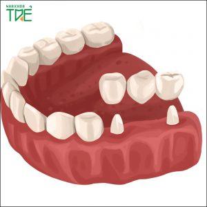 Làm cầu răng số 6 có bền không? Chi phí trồng răng là bao nhiêu?