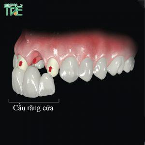 Làm cầu răng sứ cho răng cửa có tốt không? Cần lưu ý những gì?