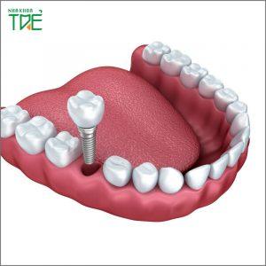 Phục hình răng cố định là gì? Phù hợp với những đối tượng nào?