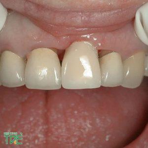 Răng sứ hết hạn sau bao lâu? Cách khắc phục như thế nào?
