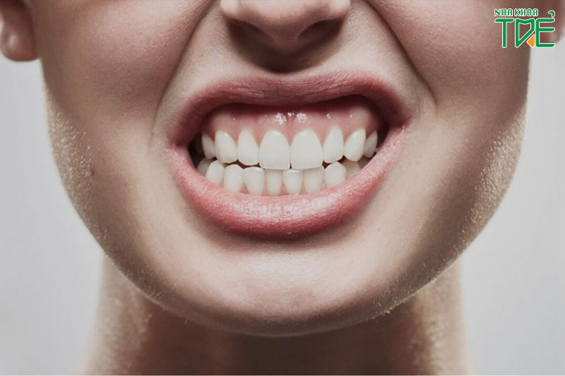 Răng lệch lạc, lệch khớp cắn gây ra nhiều vấn đề răng miệng