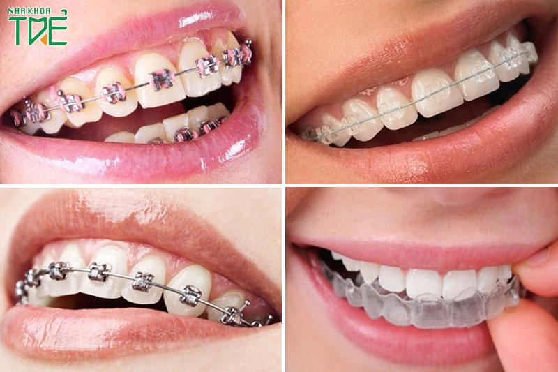 Các phương pháp niềng răng ở người lớn