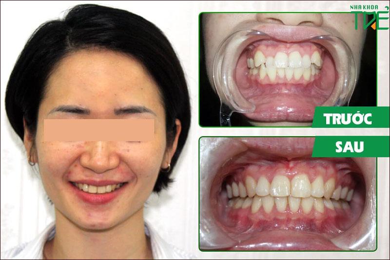 Khách hàng niềng răng khấp khểnh Nha khoa Trẻ